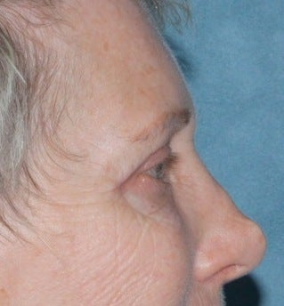 Laser resurfacing around eyes before 376160