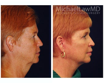Facial Rejuvenation 395152