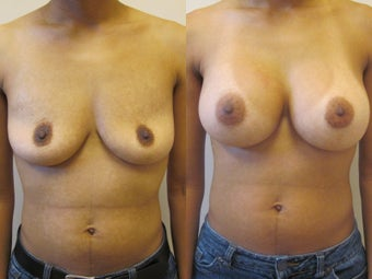 Breast augmentation before 220769