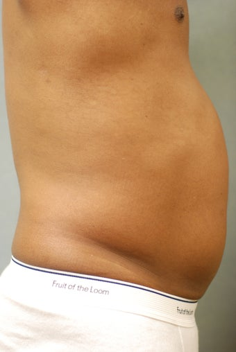 SmartLipo™  Restoration of a Male's Abs  450440