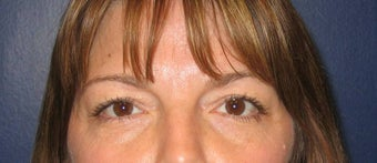 Limited-Incision Browlift and Upper Blepharoplasty
