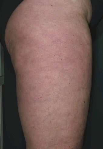 Cellulite treatment after 113274