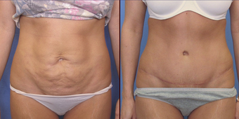 Abdominoplasty before 239132