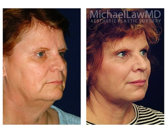 Facial Rejuvenation after 395143