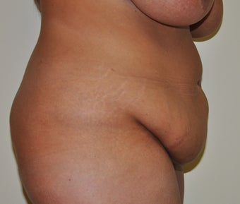 Abdominal Panniculectomy 582153