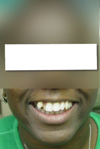 Invisalign before 437118