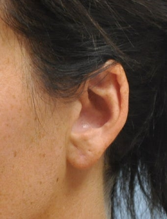 Ear Lobe Repair after 602967