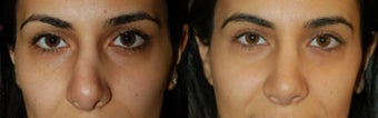 Ethnic Rhinoplasty before 346242