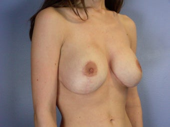 Breast Lift / Breast Augmentation after 290952