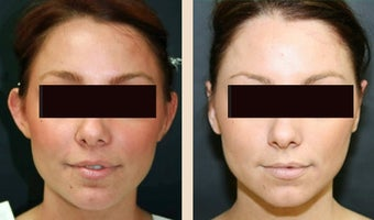 Otoplasty before 634260