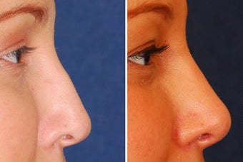 Revision Rhinoplasty before 222097