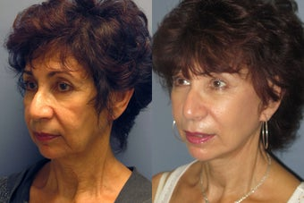 Lite Lift, Brow Lift before 523348