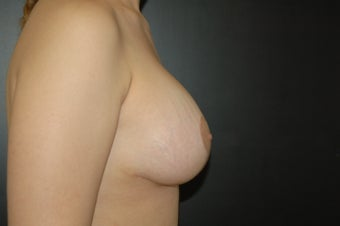Breast Augmentation with a full lift 306736