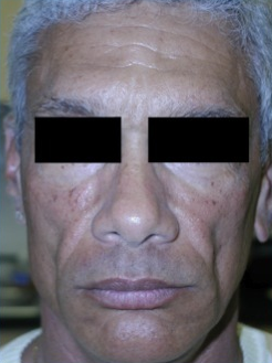 Silicone Microdroplet Therapy for Facial Atrophy before 334062