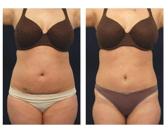 Liposuction before 397041