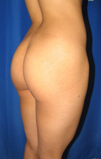 Buttocks Augmentation 420084