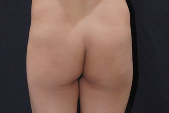 Buttock Augmentation with Gluteal Implant before 411237