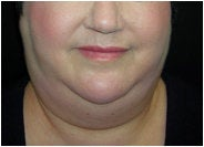 Facial/Submental Liposuction before 205376