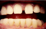 Porcelain Veneers before 535256