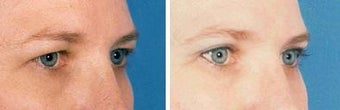 Blepharoplasty before 643212