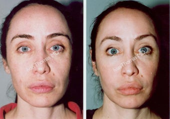 Non-Surgical Face Lift- Exoderm  before 242983