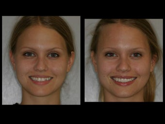 Smile Makeover with Veneers and Teeth Whitening before 58883