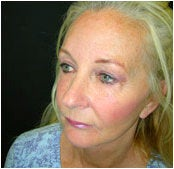 Facelift, Endoscopic Forehead Lift, Quadrilateral Blepharoplasty after 205368