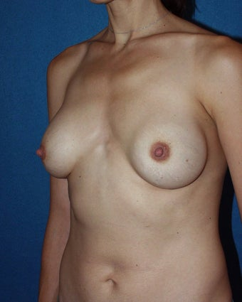 Breast Implant Removal and Reaugmentation before 117732