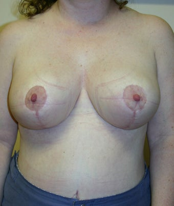 Breast reduction before and after, vertical short scar technique  after 141397