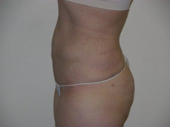 Smart Lipo after 329649