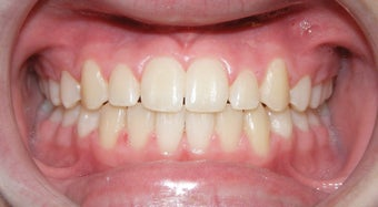 Teen Orthodontic Treatment (case #1AD) after 224689