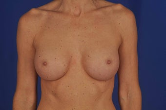 50 year-old woman desired breast implants after 634069