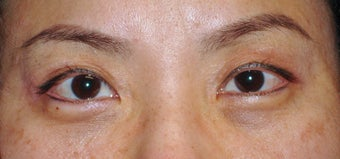 Upper Blepharoplasty after 365448