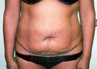 Abdominoplasty before 238220