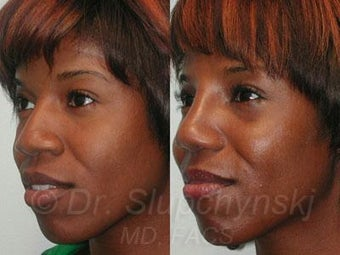 African American Rhinoplasty after 374006
