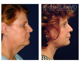 Facial Rejuvenation 395143