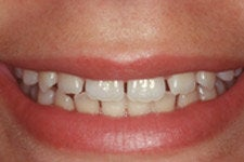 Porcelain Veneers before 379804
