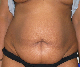 Abdominoplasty before 458934