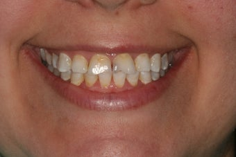 All-ceramic crowns for anterior teeth before 458440