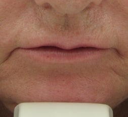 63 year old lip Augmentation with Juvederm before 53008