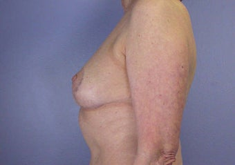 Breast Reduction after 285325