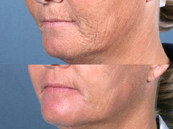 Laser Peel Treatments before 104654