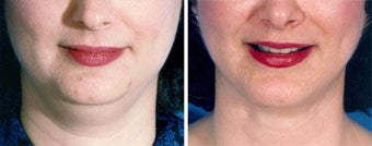 Chin Liposuction before 640691