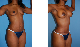 Tummy tuck, breast lift, breast implants, liposuction before 307046
