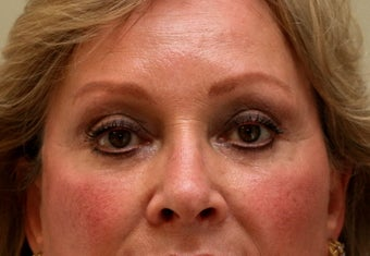 Upper & Lower Blepharoplasty with Fat Repositioning after 104061