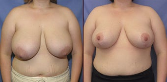 Breast reduction before 142852