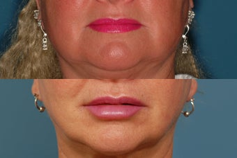 Restylane to Lips before 409155