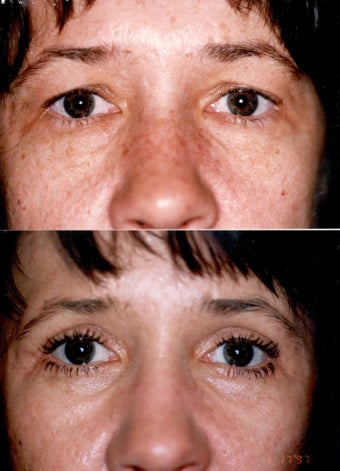 Blepharoplasty and Full Face CO2 Laser Resurfacing before 337080