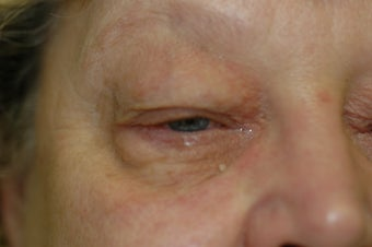 Bilateral upper and lower eyelid surgery 341554