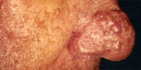 Severe Acne Rosacea before 272034